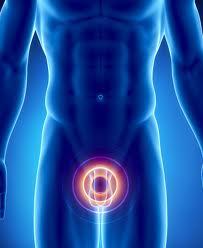 adenoma prostatu